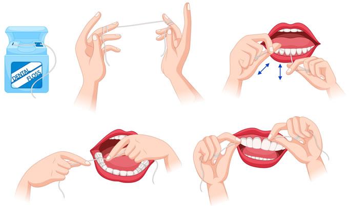 Flossing diagram