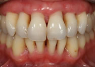 early stage gum disease treatment is required